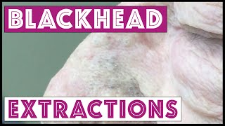 getlinkyoutube.com-Pops! More blackheads, TNTC. It's his first session so be patient! For medical education- NSFE.