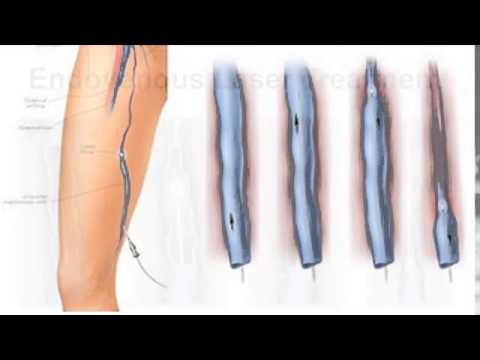 Nashville Health and Wellness : Dr. Snyder Talks About Laser Vein Surgery