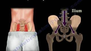 getlinkyoutube.com-Sacroiliac Joint Dysfunction Animation - Everything You Need To Know - Dr. Nabil Ebraheim, M.D.