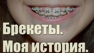 getlinkyoutube.com-Брекеты. Всё о брекетах: Моя история!