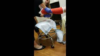 New cast post-op ankle surgery