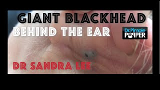 getlinkyoutube.com-Giant Blackhead, Dilated Pore of Winer, behind the ear extracted