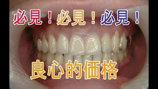 getlinkyoutube.com-保険の差し歯2 クイック矯正 オール セラミック 歯 審美歯科 美容歯科