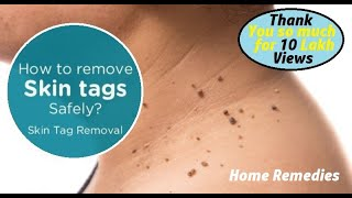 getlinkyoutube.com-Top 16 Natural Methods to Remove Skin Tags (WARTS) at Home