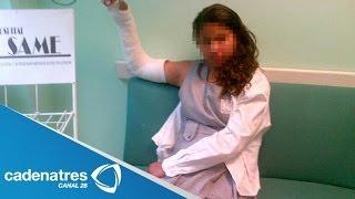 Profesor hace correr a su alumna con el brazo fracturado