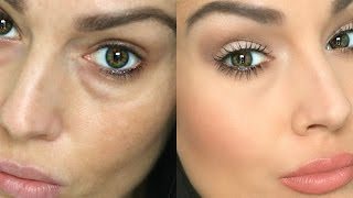 getlinkyoutube.com-How to Conceal Under Eye Circles / Bags