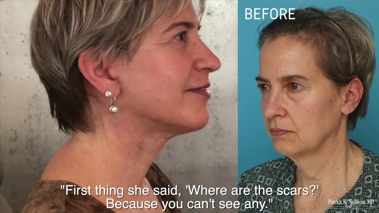 Facial Rejuvenation Patient Testimonial by Dr Patrick K Sullivan
