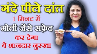 getlinkyoutube.com-How To Whiten Teeth At Home Naturally (Hindi) - Beauty   Pagent Ep.13