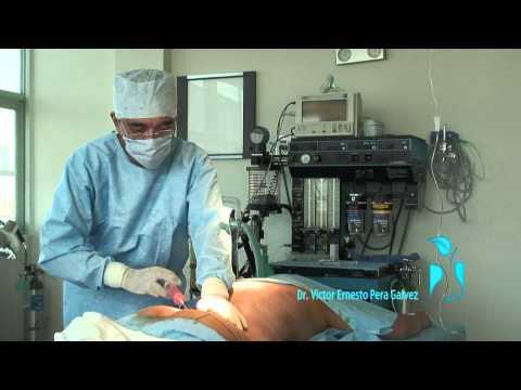Dr Victor Pera - Lipoescultura