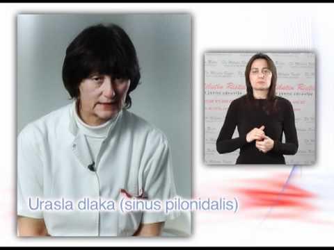 Saveti za zdravlje - Urasla dlaka sinus pilonidalis