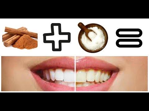 Como blanquear los dientes en tu casa/ Super Fácil
