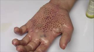 getlinkyoutube.com-Trypophobia Hand, Shark Baby Seal & Blackhead Face!  QueenKingSFX