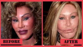 getlinkyoutube.com-5 Most Expensive Celebrity Plastic Surgeries - Top List