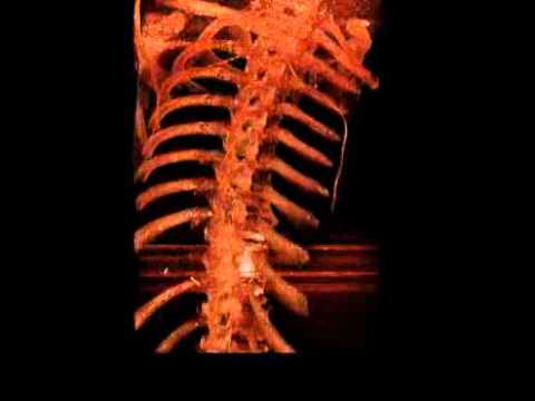 Thoracotomy for Exposure of the Spine