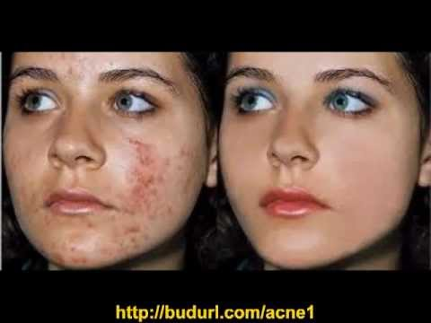 Best Acne Treatment -2OVcIfp_LjQ