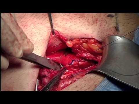 Ernioplastica inguinale con protesi leggera e colla biologica su giovane  sportivo