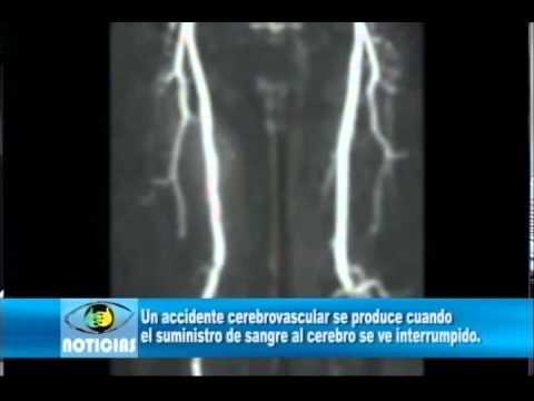 Un accidente cerebrovascular.wmv