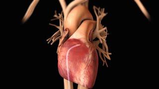 getlinkyoutube.com-Cardiac Arrhythmia