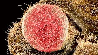 getlinkyoutube.com-Diagnostika a léčba chlamydiových infekcí