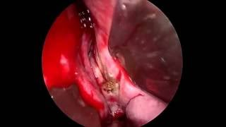 Transnasal endoscopic surgery with removal of vomer bone