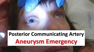getlinkyoutube.com-Posterior Communicating Artery Aneurysm Emergency