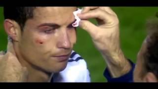 getlinkyoutube.com-Cristiano Ronaldo (KO) ojo golpeado (madrid vs levante)