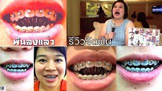 getlinkyoutube.com-จัดฟัน - จัดฟัน รีวิวจัดฟัน ดัดฟันขั้นเทพ