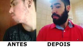 MINOXIDIL ANTES E DEPOIS NA BARBA