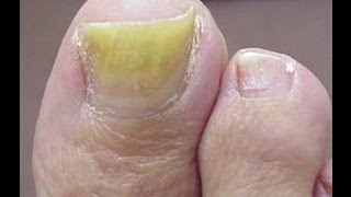 getlinkyoutube.com-The Best Treatment For Toenail Fungus - Get Rid Of Nail Fungus In 60 Days Or Less