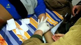 إصابة أحد عناصر الجيش الحر برصاص في الفخذ أثناء الاشتباكات على أطراف حي المنشية قبل قليل 22-2-2015