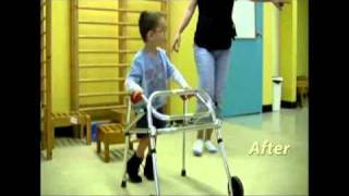 getlinkyoutube.com-Cerebral Palsy Therapy - Malek 3 years old
