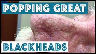 getlinkyoutube.com-Popping GREAT blackheads after Mohs skin cancer surgery