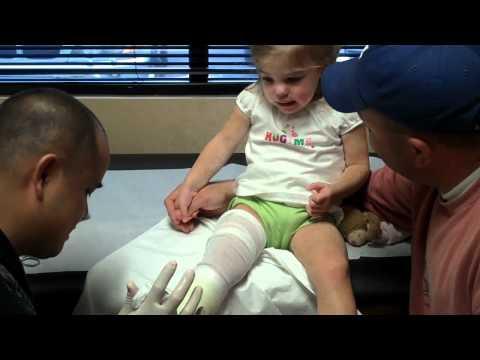 Broken Leg - Sayer gets a cast
