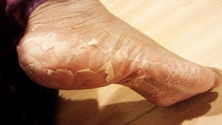 getlinkyoutube.com-My Foot Transformation | Eliminate Crusty Feet | Baby Foot