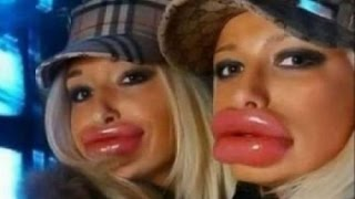 getlinkyoutube.com-Top 10 Biggest Lips.The last one covers the Lips