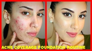 getlinkyoutube.com-Acne Coverage Foundation Routine (PRE-ACCUTANE) Drugstore Products!!!