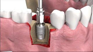 getlinkyoutube.com-Имплантация зубов: виды, техника операции и цены