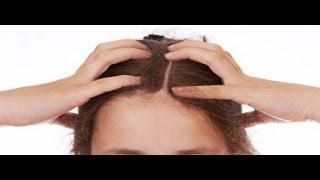 getlinkyoutube.com-التخلص من الصلع وتساقط الشعر و انبات الشعر وتكثيف الشعرالخفيف وصفة خلطة طبيعية فعالة#IFADA