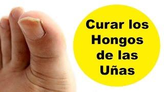 getlinkyoutube.com-Hongos de las uñas de los pies y manos – Onicomicosis tratamiento natural