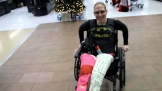 batgirl's two ful leg casts