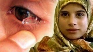 getlinkyoutube.com-เด็กหญิงที่ร้องไห้ออกมาเป็นคริสตัล | เด็กหญิงวัย12ปีชาวเลบานอน ผู้มีน้ำตาเป็นคริสตัล