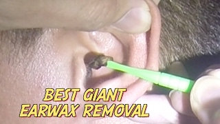 Best Giant Earwax Removal