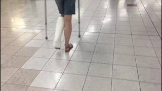 Short Leg Cast