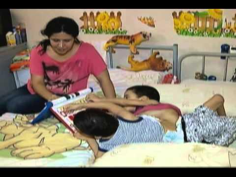 Cirurgia separa gêmeos siameses em Goiânia