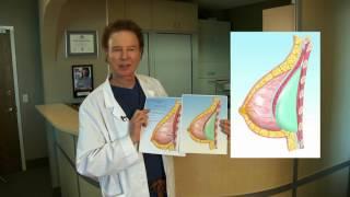 getlinkyoutube.com-Ask Dr Joe Dual Plane Breast Augmentation