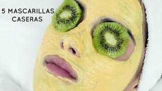 getlinkyoutube.com-5 Mascarillas caseras para el acne, espinillas, poros abiertos y manchas  | Doralys Britto