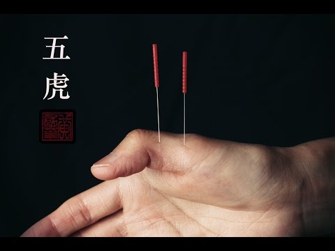 Instant Finger Pain Relief Acupuncture