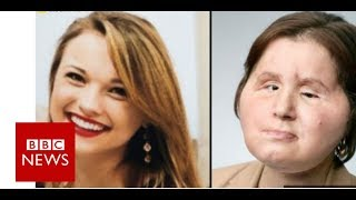 Coping with our daughter's new face - BBC News width=