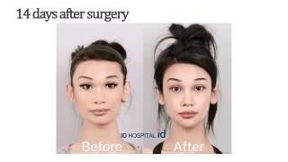 getlinkyoutube.com-American girl experiencing plastic surgery in Korea and the result is unbelievable!
