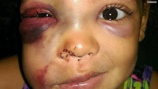 getlinkyoutube.com-Was 5-year-old girl beat up on school playground?